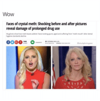 """😂😂😂: WOW  Faces of crystal meth: Shocking before and after pictures  reveal damage of prolonged drug use  Mugshots show how meth leaves addicts' faces looking gaunt, aged and suffering from """"meth mouth"""" after dental  hygiene standards decline  BY GEMMA MULLIN  stock photogasm  UPDATED 1008 28 JAN 2016 😂😂😂"""