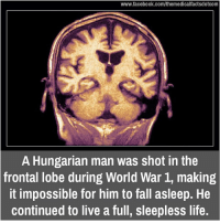 frontal lobe: www.facebook.com/themedicalfactsdotcom  A Hungarian man was shot in the  frontal lobe during World War 1, making  it impossible for him to fall asleep. He  continued to live a full, sleepless life.