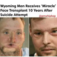 Memes, Suicide, and Miracles: Wyoming Man Receives Miracle'  Face Transplant 10 Years After  Suicide Attempt  apmawhiphop Ten years ago, AndySandness tried to commit suicide by shooting himself in the face. After miraculously surviving the horrific incident, the 31-year-old has received one the rarest surgeries in the world — a face transplant. - FULL VIDEO & STORY AT PMWHIPHOP.COM LINK IN BIO