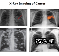 "Cancer, Ray, and X-Ray: X-Ray Imaging of Cancer <p>Whats the diagnosis on this format? I think its still worth buying via /r/MemeEconomy <a href=""https://ift.tt/2wptilb"">https://ift.tt/2wptilb</a></p>"