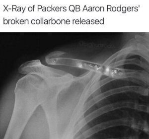 Green Bay Packers Memes | Funniest Packers Memes on the Internet: X-Ray of Packers QB Aaron Rodgers'  broken collarbone released  Obighurtrocks Green Bay Packers Memes | Funniest Packers Memes on the Internet