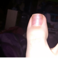 """Y'all can say """"ew gross I hate feet especially crusty ones like this"""" but in the end I still have 10k+ more followers than you bc of my username so try tf again: Y'all can say """"ew gross I hate feet especially crusty ones like this"""" but in the end I still have 10k+ more followers than you bc of my username so try tf again"""
