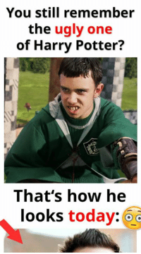 Read the full story here 👉 http://1jux.org/-6vjk: You still remember  the  ugly one  of Harry Potter?  That's how he  looks today: Read the full story here 👉 http://1jux.org/-6vjk