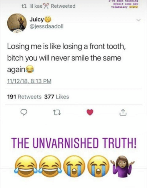Bitch, Juicy, and Smile: ti lil kae Retweeted  nyself some w  vocabulary u  Juicy  @jessdaadoll  Losing me is like losing a front tooth,  bitch you will never smile the same  again  11/12/18, 8:13 PM  191 Retweets 377 Likes  THE UNVARNISHED TRUTH!