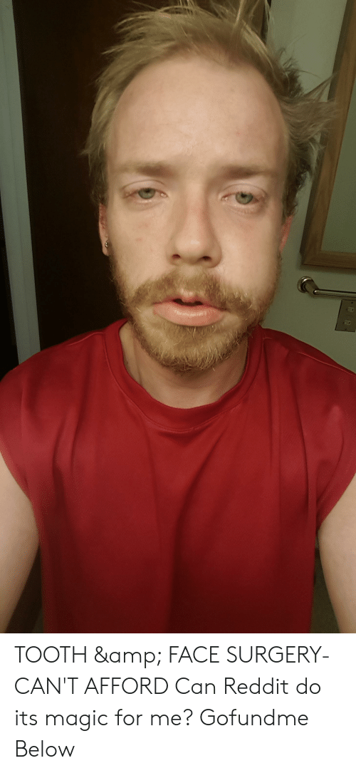 TOOTH &Amp FACE SURGERY- CAN'T AFFORD Can Reddit Do Its
