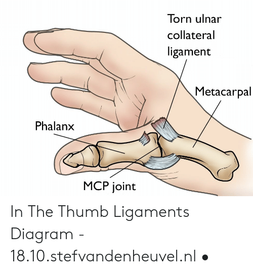 torn ulnar collateral ligament metacarpal phalanx mcp joint in the Strained Ligament in Thumb
