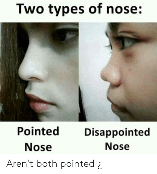 Two Types Of Nose Pointed Disappointed Aren't Both Rhmeme: Infinity Blink Wiring Diagram At Gmaili.net