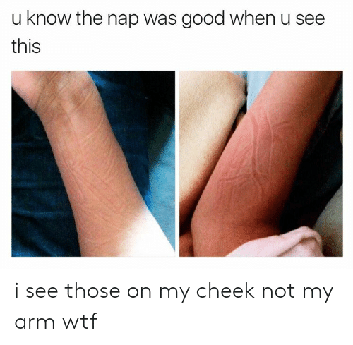 Wtf, Good, and Arm: u know the nap was good when u see  this i see those on my cheek not my arm wtf