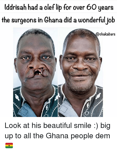 Beautiful, Memes, and Ghana: Uddrisah had a clef lib for over 60 years  the surgeons in Ghana did a wonderfuljob  @chakabars Look at his beautiful smile :) big up to all the Ghana people dem 🇬🇭
