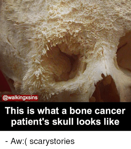Memes, Cancer, and Skull: @walkingxsins  This is what a bone cancer  patient's skull looks like - Aw:( scarystories