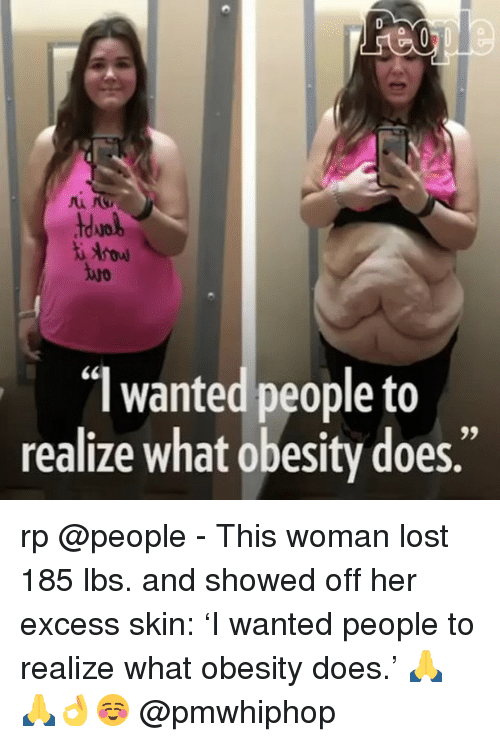 Memes, Lost, and 🤖: wanted people to  realize what obesity does. rp @people - This woman lost 185 lbs. and showed off her excess skin: 'I wanted people to realize what obesity does.' 🙏🙏👌☺ @pmwhiphop