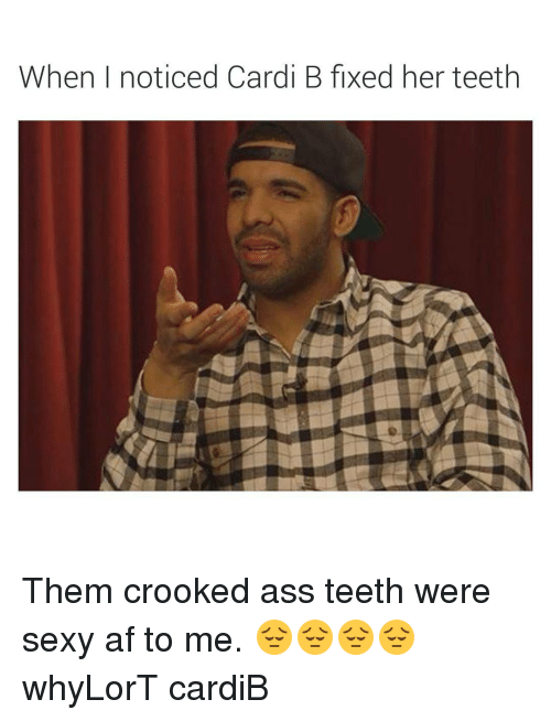 When I Noticed Cardi B Fixed Her Teeth Them Crooked Ass Teeth Were