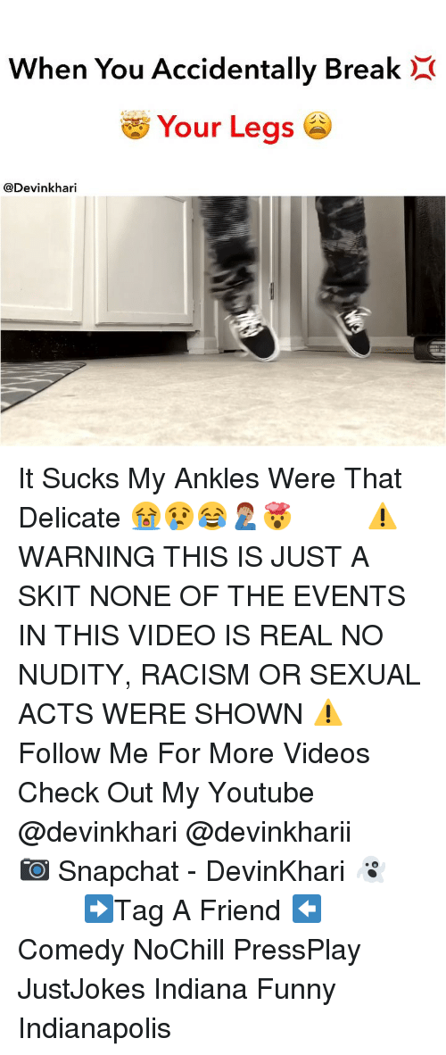 Funny, Memes, and Racism: When You Accidentally BreakX  Your Legs  @Devinkhari It Sucks My Ankles Were That Delicate 😭😢😂🤦🏽♂️🤯 ━━━━━━━ ⚠️ WARNING THIS IS JUST A SKIT NONE OF THE EVENTS IN THIS VIDEO IS REAL NO NUDITY, RACISM OR SEXUAL ACTS WERE SHOWN ⚠️ ━━━━━━━ Follow Me For More Videos Check Out My Youtube @devinkhari @devinkharii ━━━━━━━ 📷 Snapchat - DevinKhari 👻 ━━━━━━━ ➡️Tag A Friend ⬅️ Comedy NoChill PressPlay JustJokes Indiana Funny Indianapolis