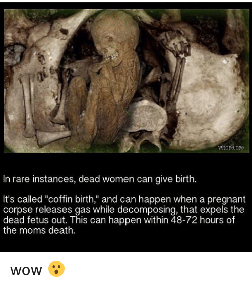 "Memes, Moms, and Pregnant: whore ore  In rare instances, dead women can give birth.  It's called ""coffin birth,"" and can happen when a pregnant  corpse releases gas while decomposing, that expels the  dead fetus out. This can happen within 48-72 hours of  the moms death. wow 😮"