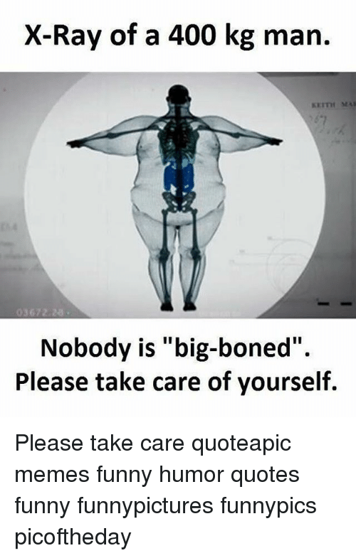 Funny Memes And Quotes X Ray Of A  Kg Man