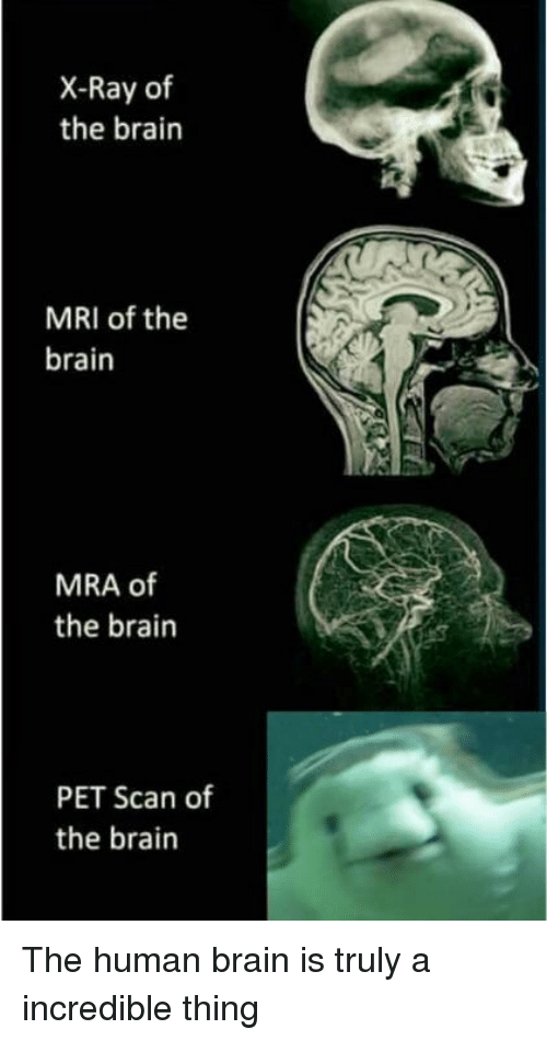 X ray of the brain mri of the brain mra of the brain pet scan of the reddit brain and human x ray of the brain mri of the ccuart Image collections