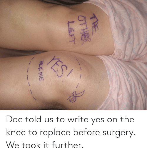 Yes, Doc, and Surgery: YES!  THE  0THER  LEFT  PICK ME Doc told us to write yes on the knee to replace before surgery. We took it further.