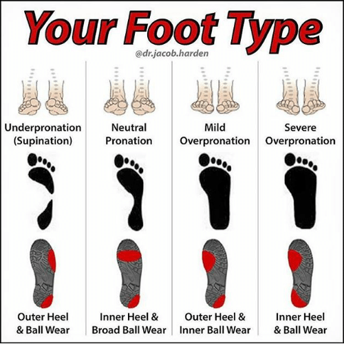 Your Foot Type Under Pronation Neutral Mild Severe Supination ...